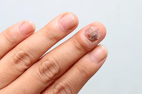 Mittlerer Nagel von Psoriasis befallen