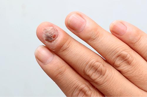 schuppenflechte nägel behandlung