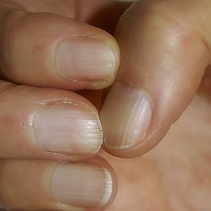 Nach der Anwendung nahezu ohne Nagelprobeme