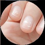 Weiße Flecken auf den Nägeln